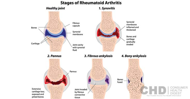 estágios da artrite