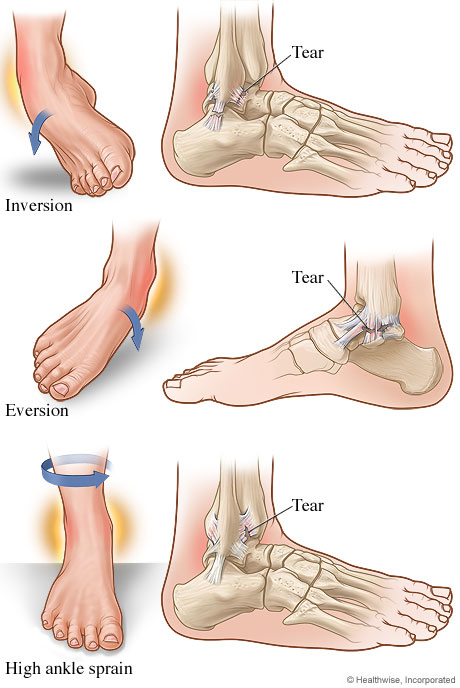 tipos de entorse de tornozelo
