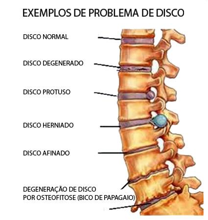 problemas de disco