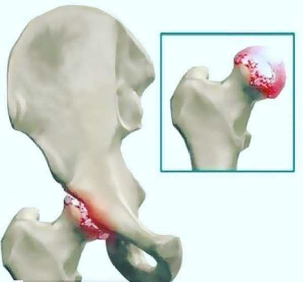 artrose de quadril