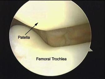viscossuplementação joelho