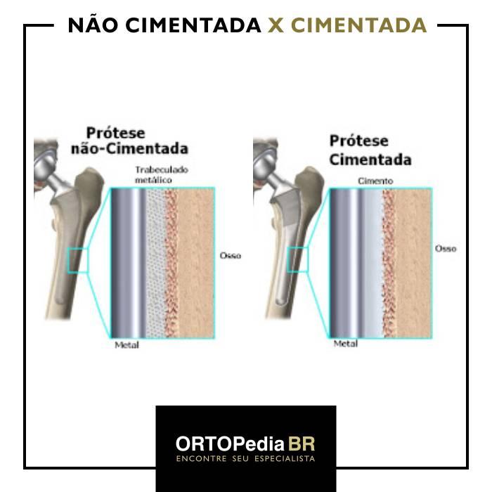 prótese de quadril cimentada e não cimentada