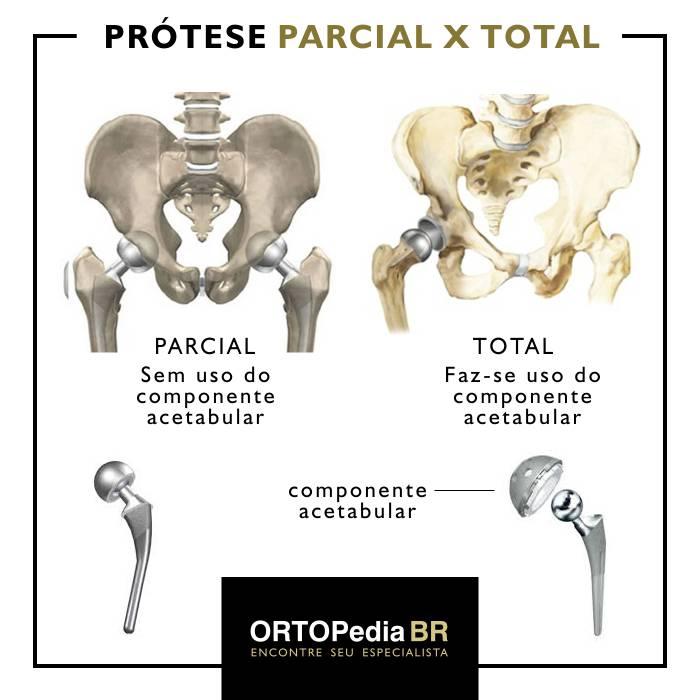 prótese de quadril total e parcial