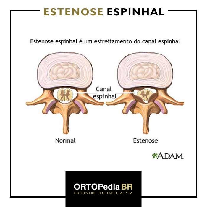 estenose espinhal